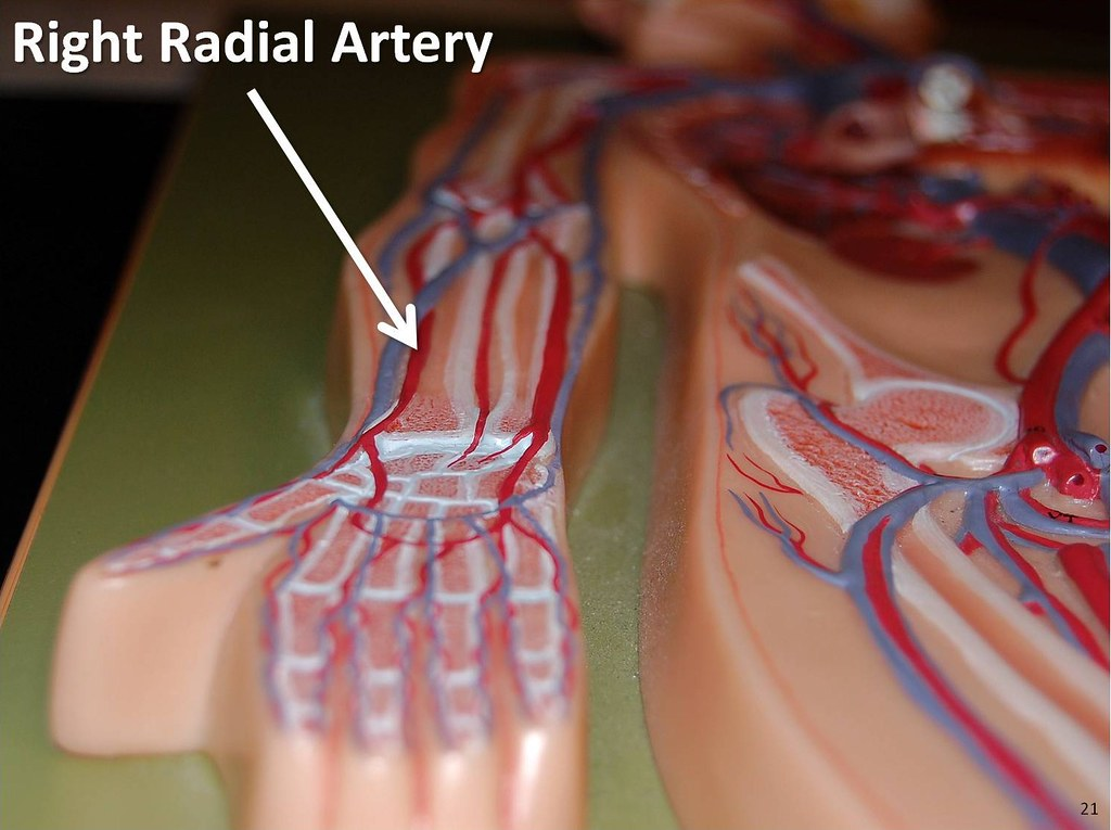 Right radial artery - The Anatomy of the Arteries Visual G ...