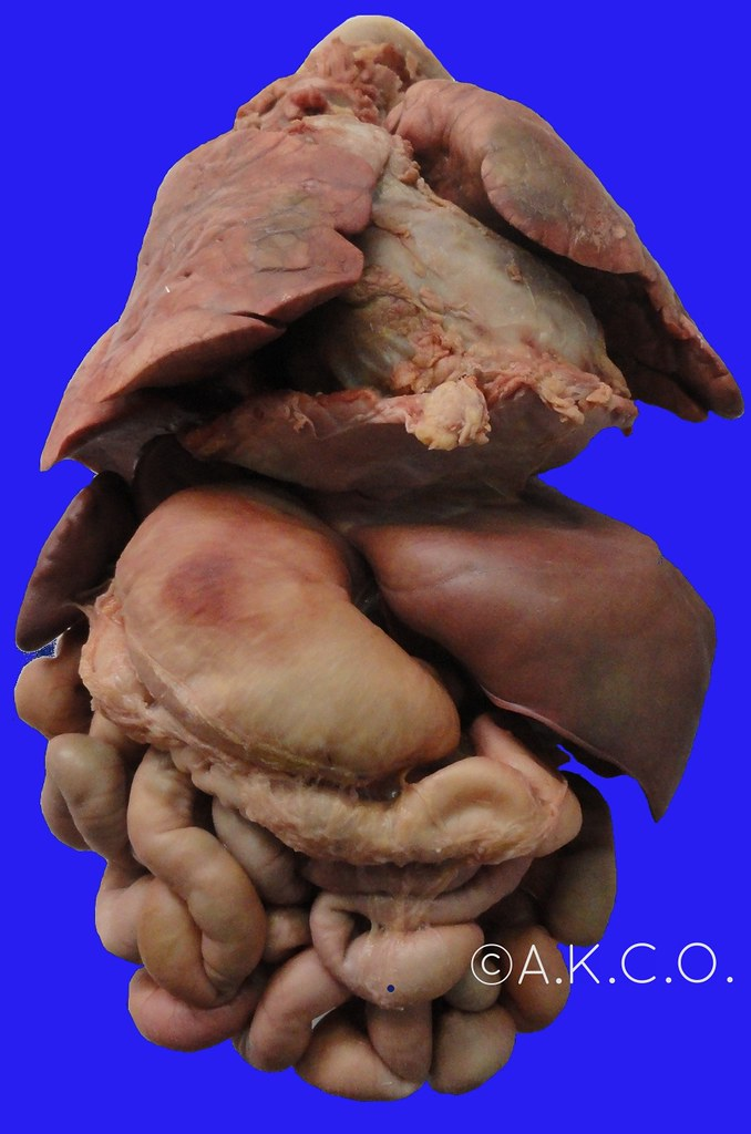 Situs Inversus Completus Front Autopsy 6 Days Old Pt