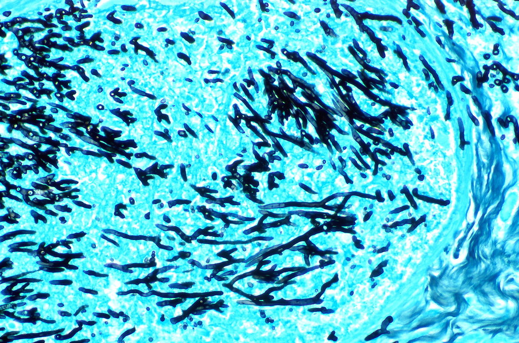 gms stain