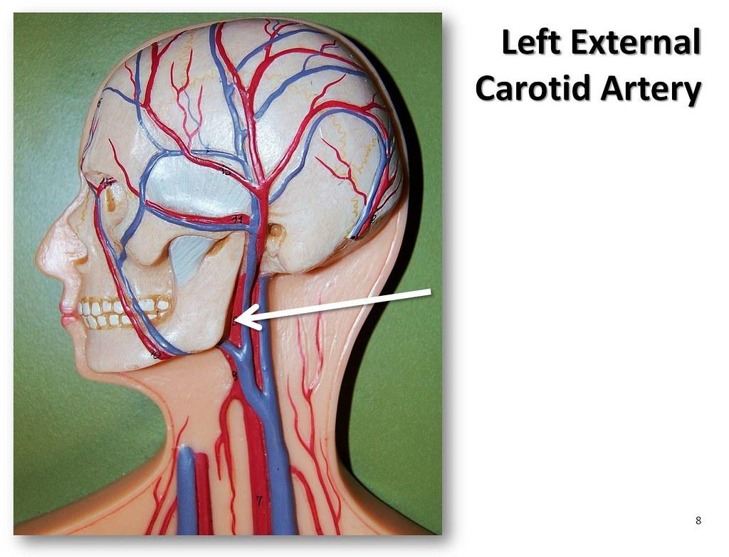 Left external carotid artery - The Anatomy of the Arteries ...