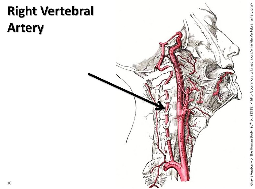 Images Of Left Vertebral Artery Spacehero
