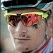 André Greipel scarred
