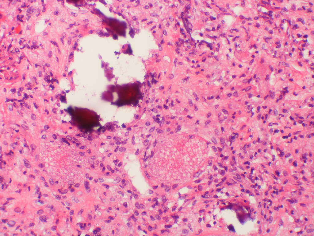 pathology report hillcrest case 8 The computerized database of the department of anatomical pathology royal north shore hospital was searched for all pituitary adenomas resected during the there have been 8 previously reported cases of pituitary adenoma occurring in association with confirmed germline sdh mutation, comprising 1 adenoma.