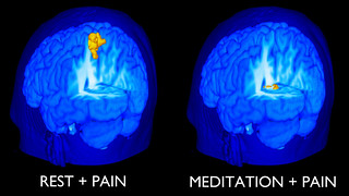 MRI Scans of Brain of Novice Meditator with Pain | by On Being