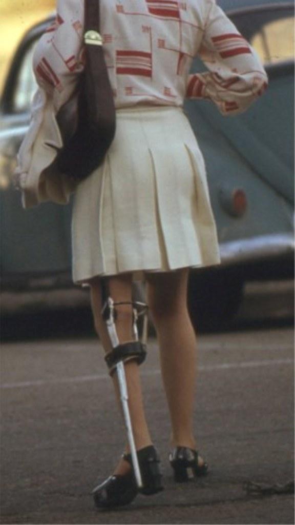Paraplegic lady dangling legs