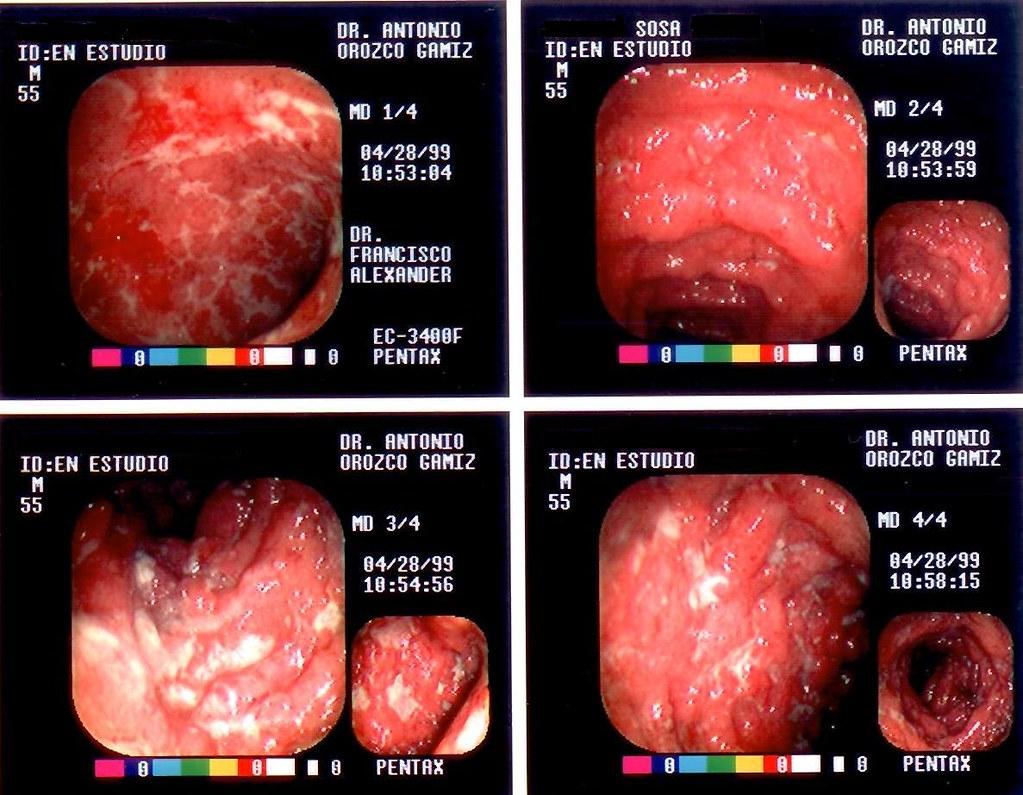 colitis ulcerosa durchfall