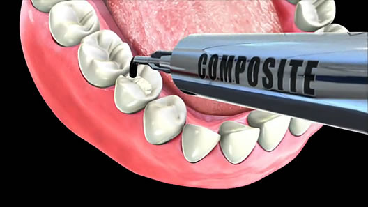 color stability of dental composite resin