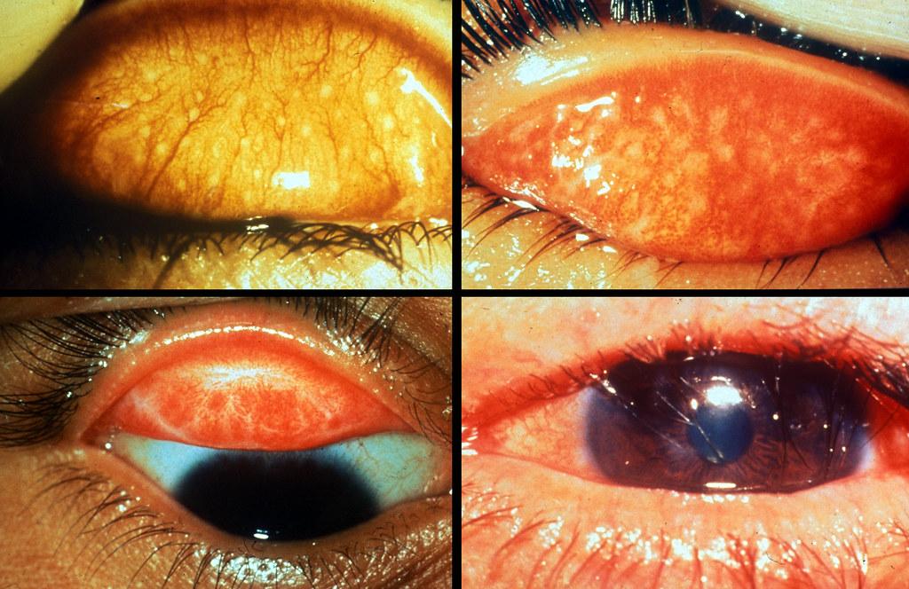 Zithromax chlamydia eye infections