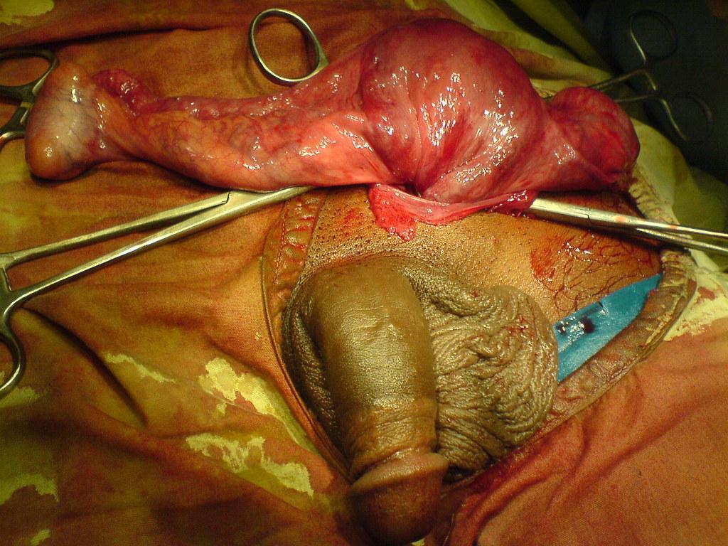 оба половых органа у женщины фото