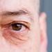 Lorenzo's eye