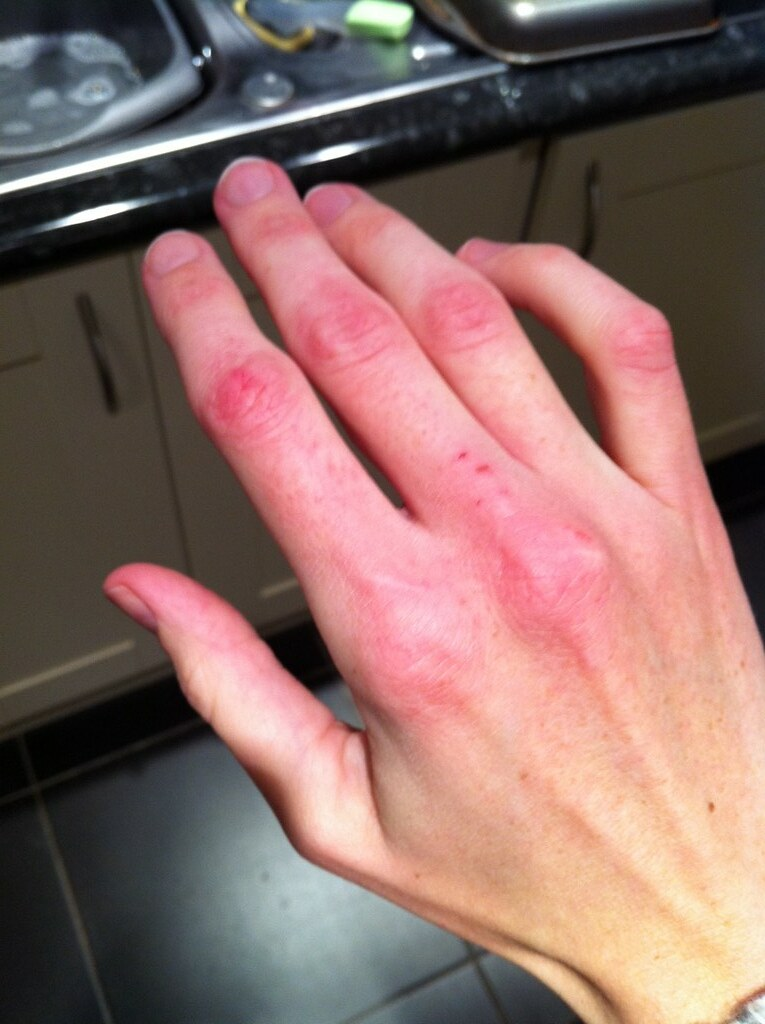 Image Result For Cracking Hand