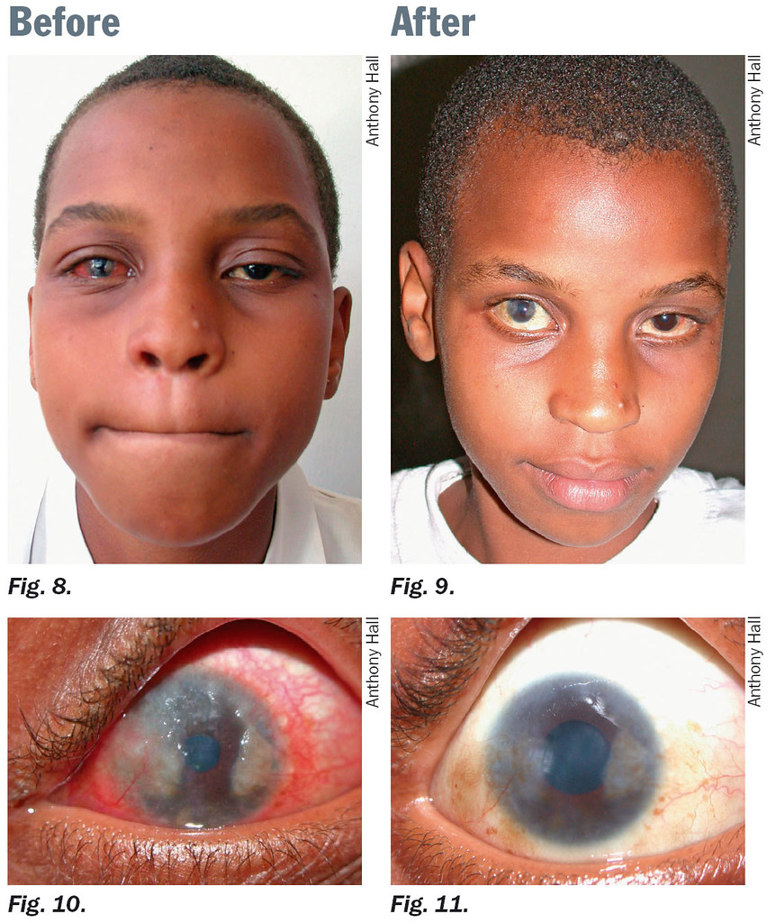 Image Result For Can Conjunctivitis Be