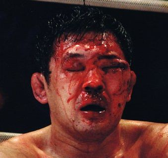 sakuraba vs ricardo arona | Damage done to Sakuraba by ...