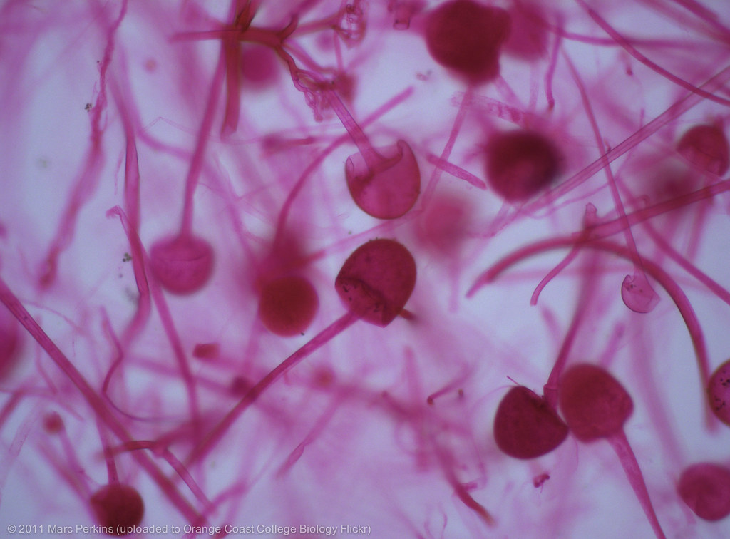 Rhizopus sporangia | Stained sporangia of Rhizopus sp ...