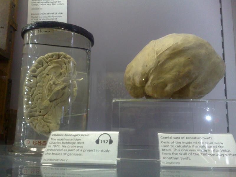 babbage brain