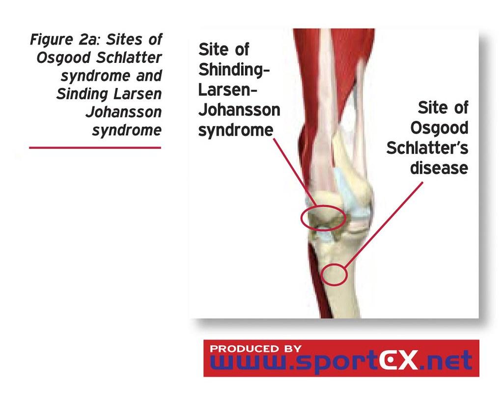 sites of osgood schlatter syndrome and sinding larsen joha u2026