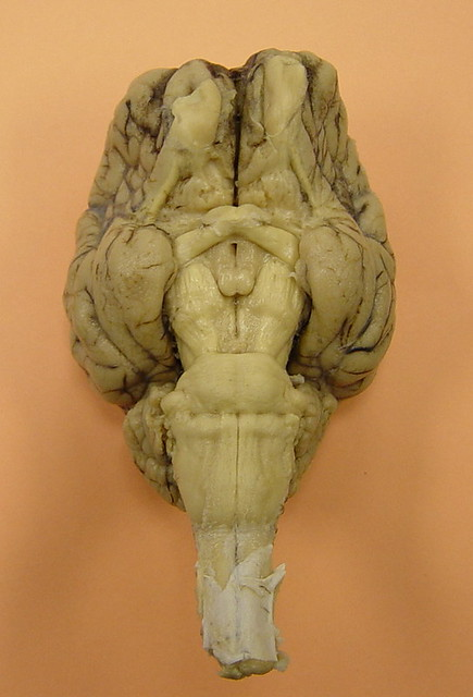 Sheep brain anatomy ventral - photo#43