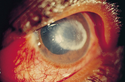 Ring Keratitis