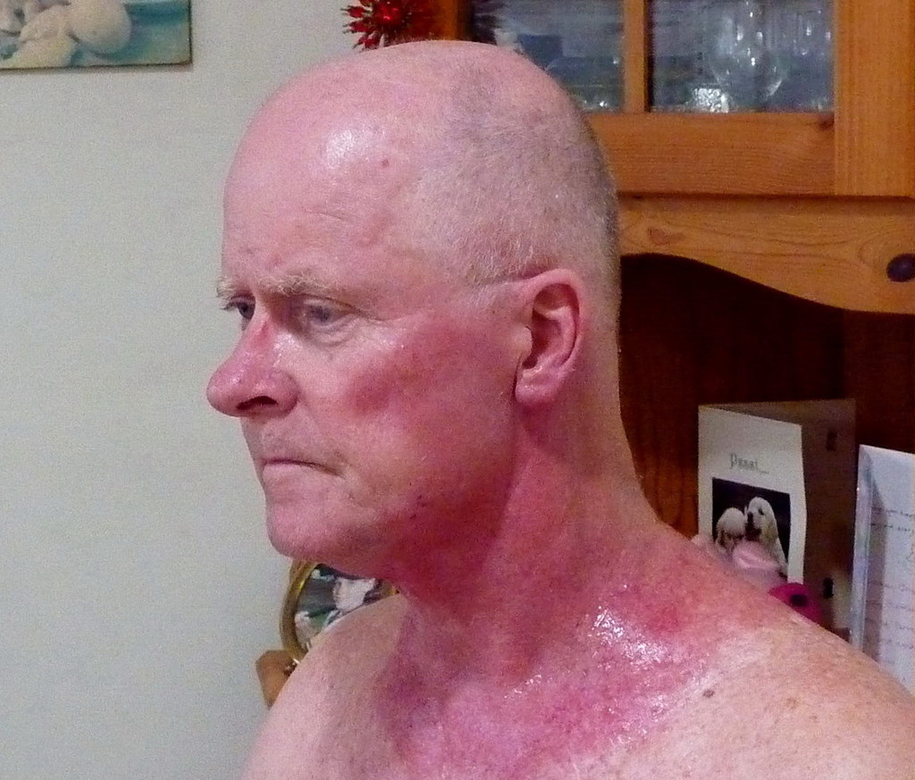 Effects Of Radiation Treatment The Skin Has Reacted