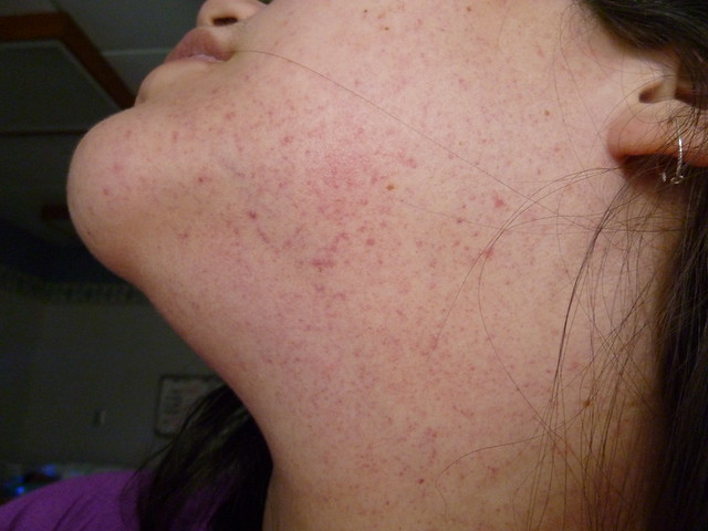 Facial capillaries causes broken alcohol