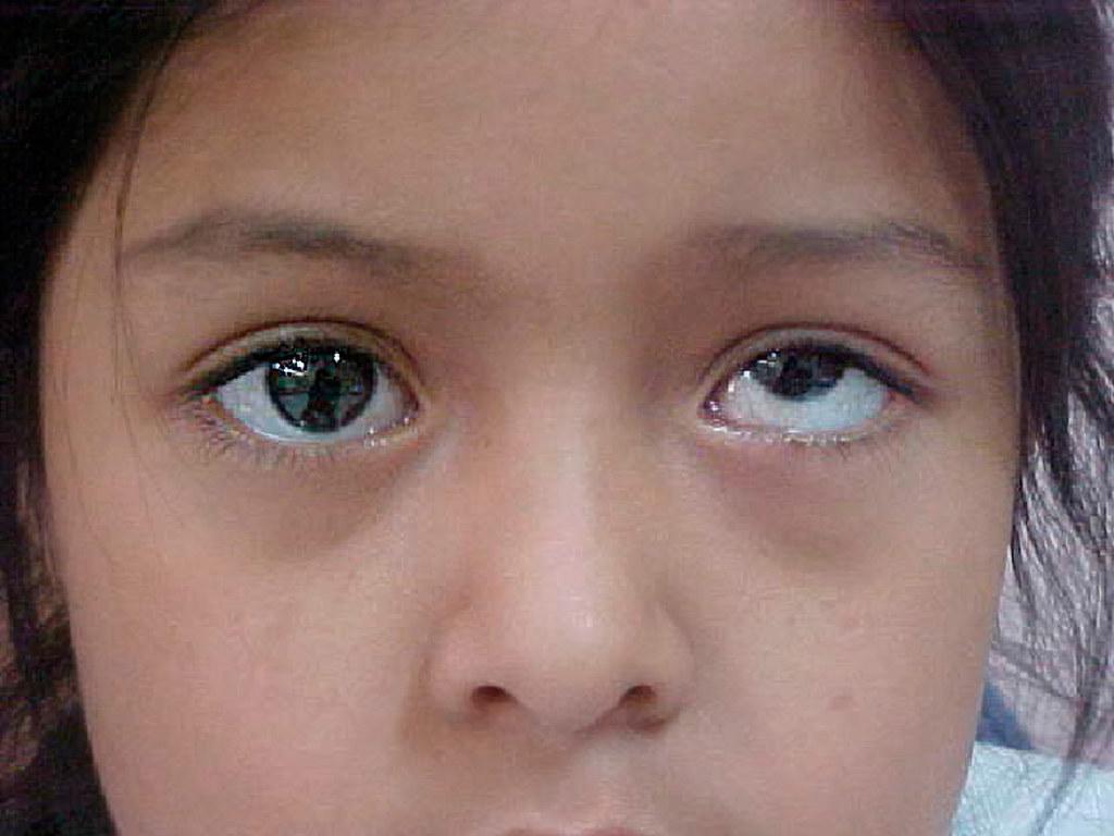 Natural Violet Eye Color Albino