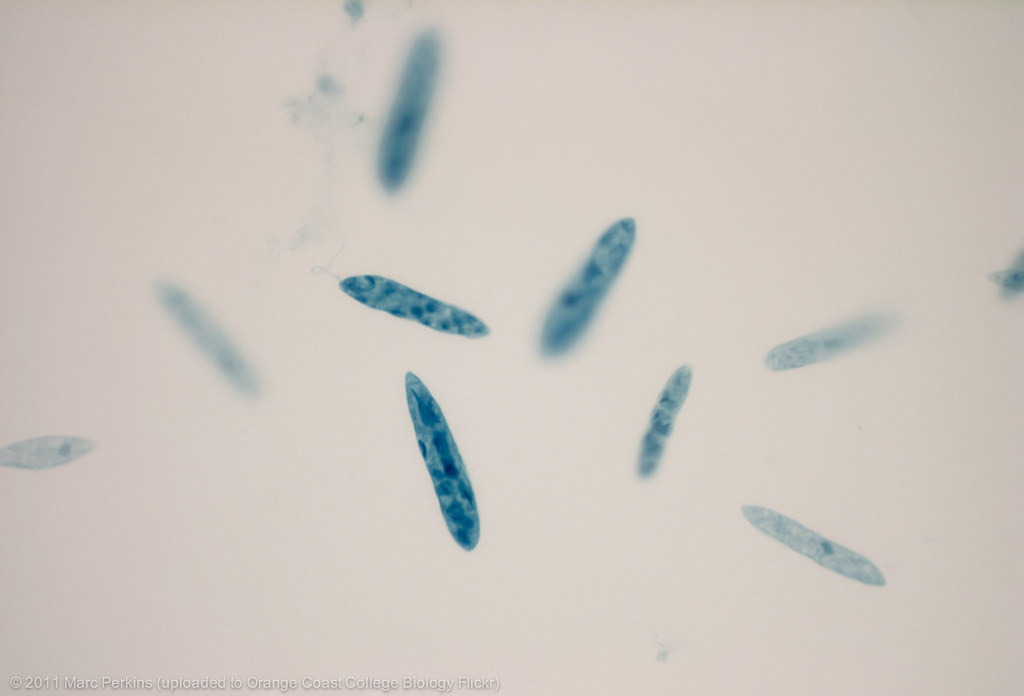 Euglena at 400x | A preserved slide of Euglena showing a ...