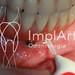 limpeza do implante dentário