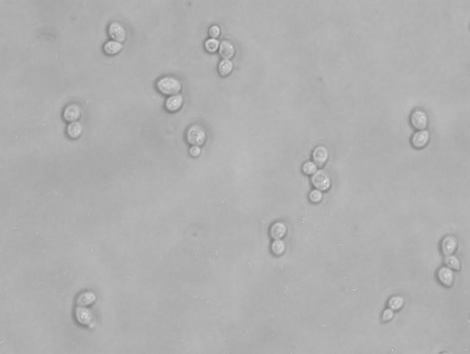 Budding yeast | Budding yeast (Saccharomyces cerevisiae ...