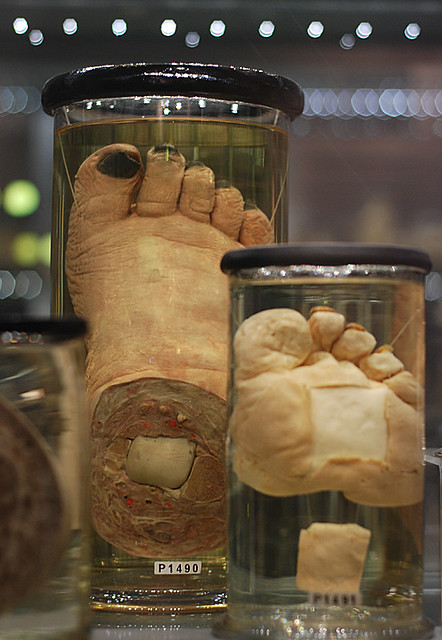 Hunterian Museum Elephantitis Flickr Photo Sharing
