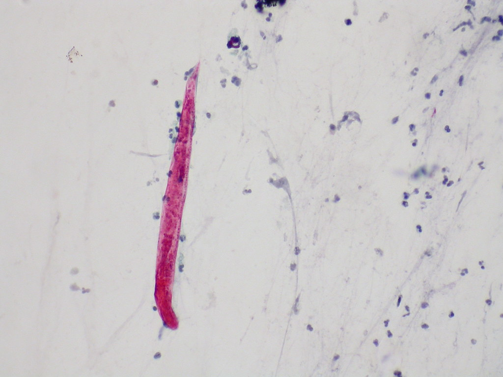 Strongyloidiasis Bronchial Washing Filariform Larva Of