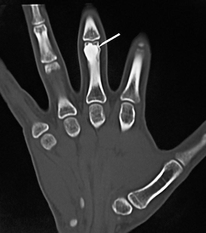 Osteoma of a Long Bone!