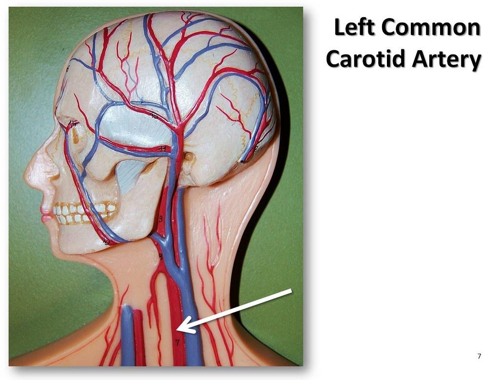 Где в человека находится сонная артерия