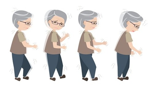 Phòng ngừa té ngã ở người bệnh Parkinson