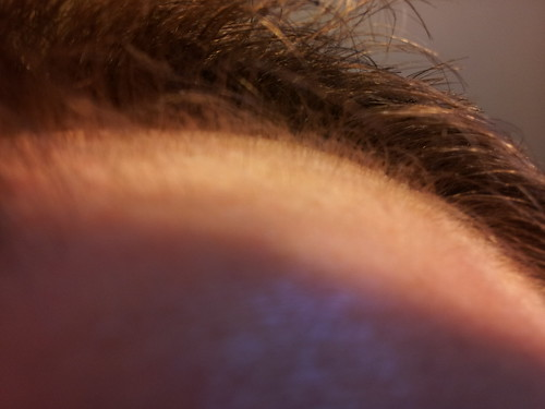 Scalp Closeup May 5, 2012. 33 days of ZX42. Stay Tuned...hairfuelonline.com | by jcreely