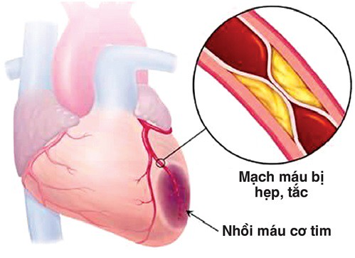 Thiếu máu cơ tim gây ra bởi tắc hẹp động mạch vành