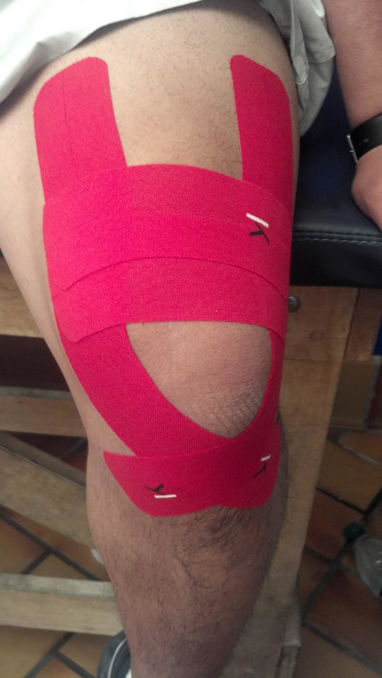 Kt Tape For Pain At Top Of Knee Pain At Top Of Knee Cap P Flickr