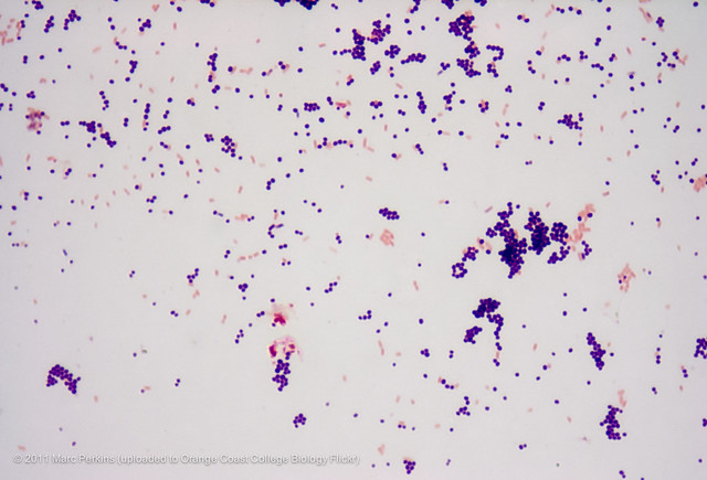 bacillus mycoplasma and escherichia Similar to escherichia coli repb protein from incx1 plasmid pe001 [escherichia coli] nc_0232772 (128632129486, complement) d616_p109112: select item 18157639.