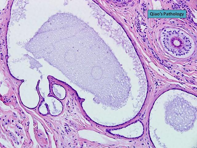hidrocystoma