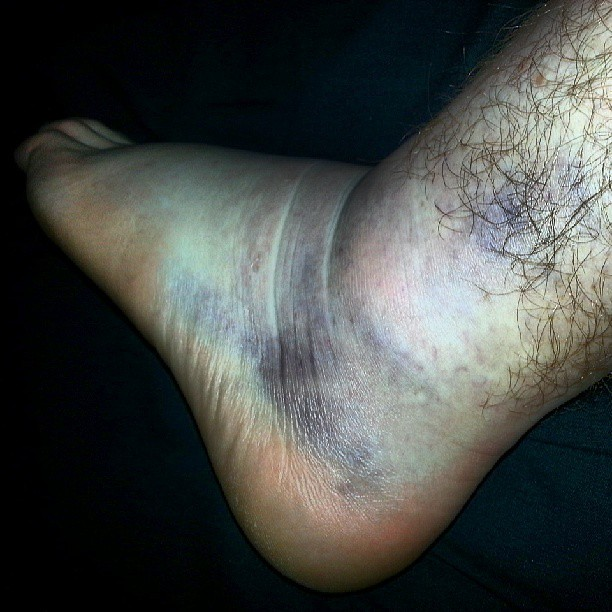 Rolled ankle.   Nicholas Bowers   Flickr