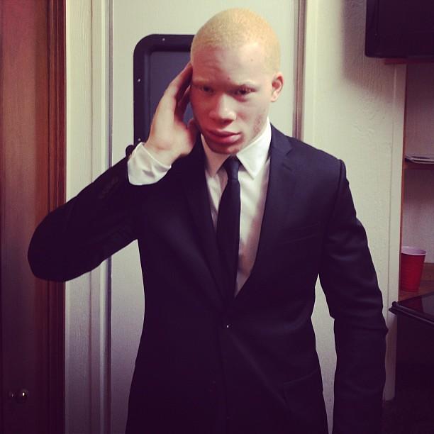 Black Albino Actor Albino Actor Sir Maejor