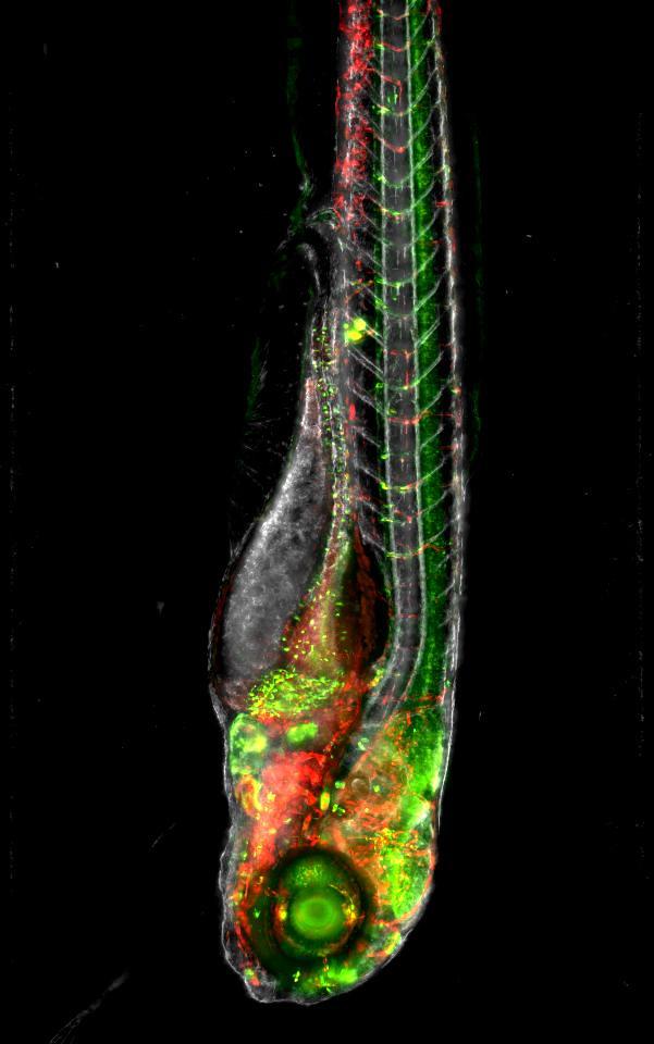 Zebrafish embryo, multiview light-sheet fluorescence micro ...