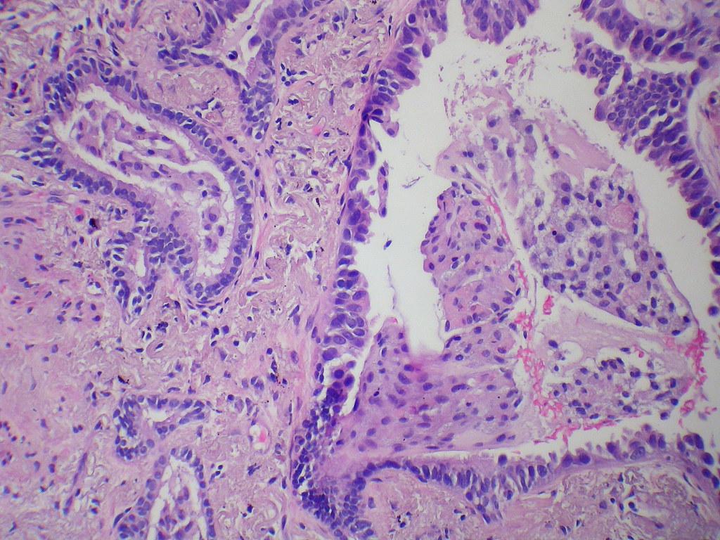 Carcinoma in situ arising in bronchiolar metaplasia co-exi ...