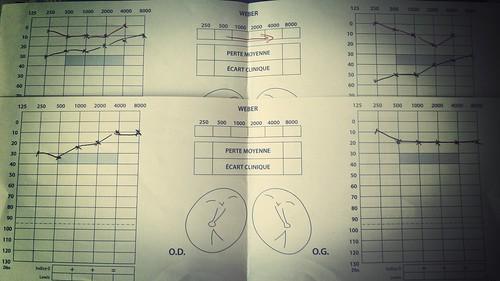 otospongiose  j+1 mois