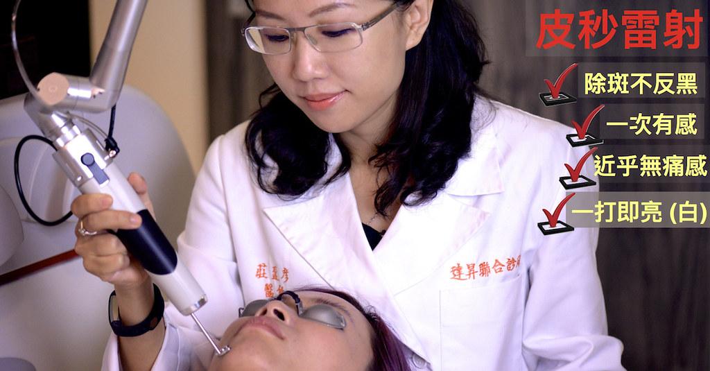 臉上的斑點是皮膚老化問題,造成斑點的原因很多,想消除斑點需要皮膚科醫師判斷!最新的除斑新科技是皮秒雷射,不管是肝斑、老人斑等等的斑點,全部都可以消除。