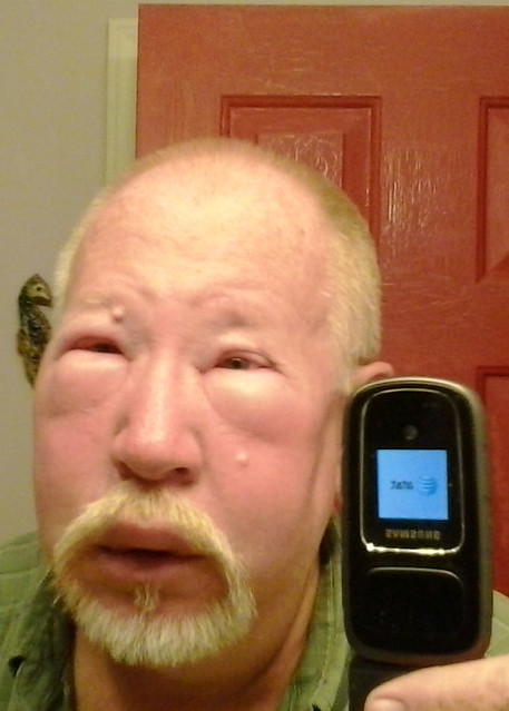 Bee sting allergic reaction - photo#23