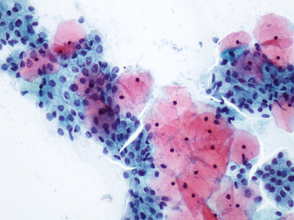 C 233 Lulas Endocervicales C 233 Lulas Endocervicales Mezcladas