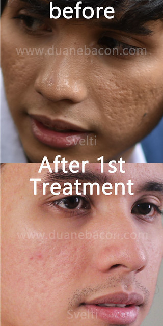 svelti derm derma duane bacon blogger mens wear model lifestyle beauty before after