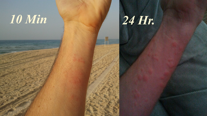 sea lice ashqelon israel כינת ים אשקלון ישראל
