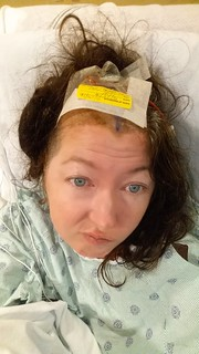 5/25/16  9 days after the aneurysm at this point I've had 2 brain surgeries & was wondering what on earth I could do with my hair.