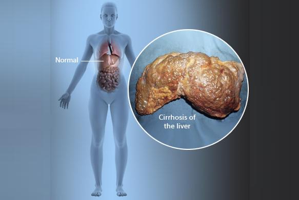 Bahaya penyakit sirosis hati
